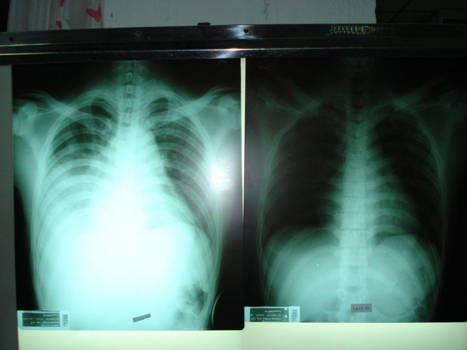 การเสียชีวิตผิดปกติของ ผู้ป่วย Pneumonia
