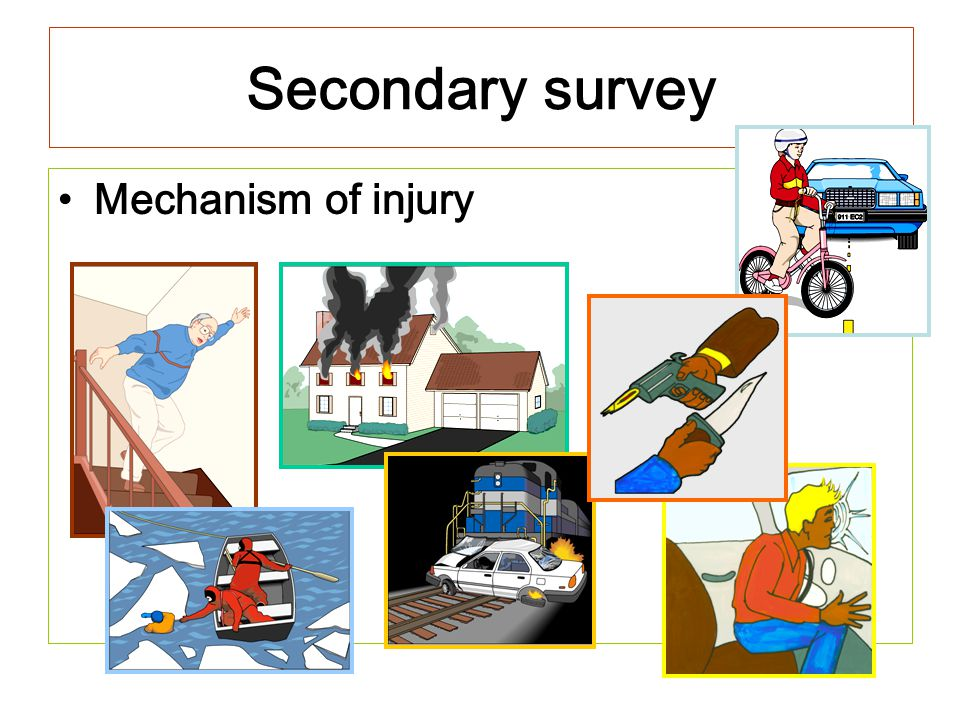 Secondary survey Mechanism of injury