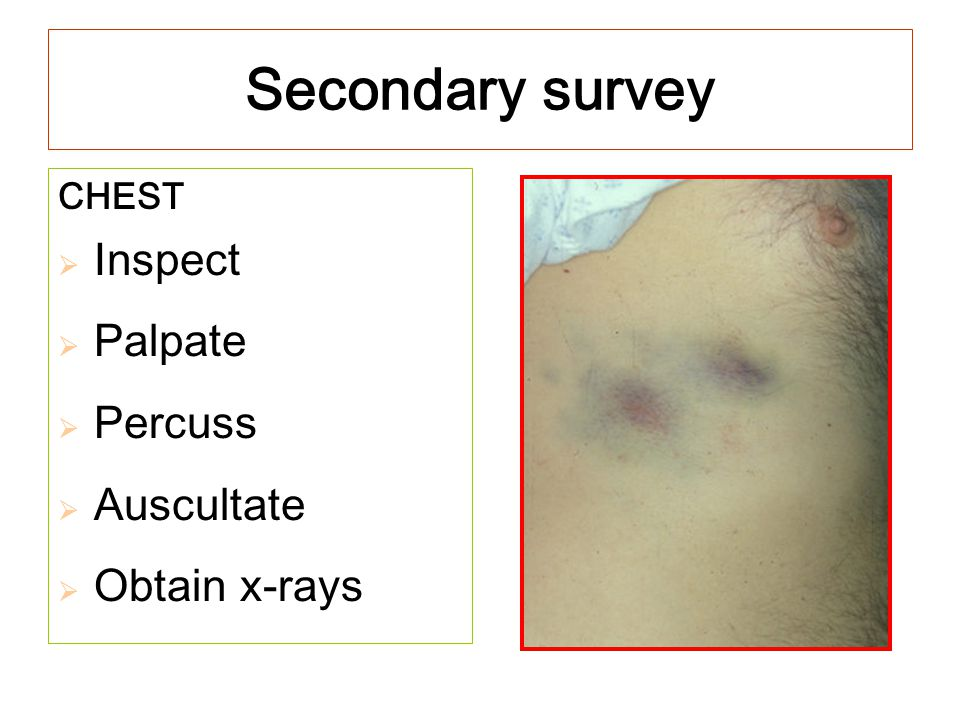 Secondary survey CHEST  Inspect  Palpate  Percuss  Auscultate  Obtain x-rays