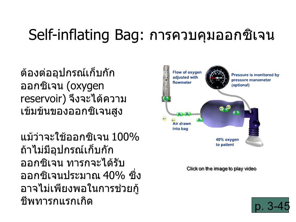 3-34 Self-inflating Bag: การควบคุมออกซิเจน ต้องต่ออุปกรณ์เก็บกัก ออกซิเจน (oxygen reservoir) จึงจะได้ความ เข้มข้นของออกซิเจนสูง แม้ว่าจะใช้ออกซิเจน 100% ถ้าไม่มีอุปกรณ์เก็บกัก ออกซิเจน ทารกจะได้รับ ออกซิเจนประมาณ 40% ซึ่ง อาจไม่เพียงพอในการช่วยกู้ ชีพทารกแรกเกิด Click on the image to play video p.