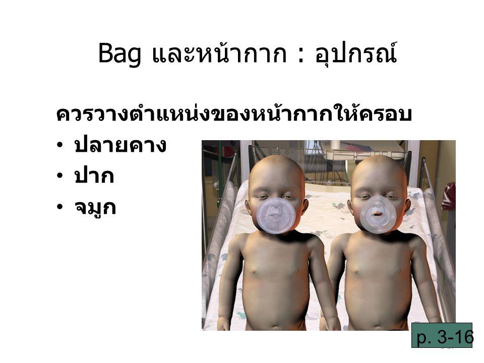 3-37 ควรวางตำแหน่งของหน้ากากให้ครอบ ปลายคาง ปาก จมูก p. 3-16 Bag และหน้ากาก : อุปกรณ์