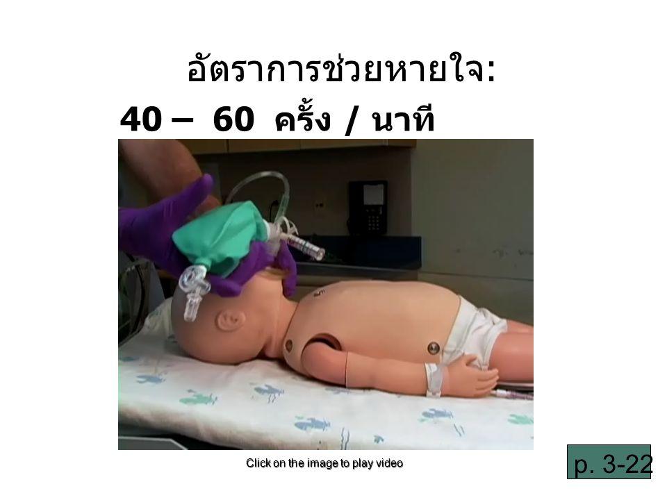 3-39 อัตราการช่วยหายใจ: 40 – 60 ครั้ง / นาที Click on the image to play video p. 3-22