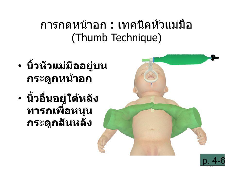 4-51 การกดหน้าอก : เทคนิคหัวแม่มือ (Thumb Technique) นิ้วหัวแม่มืออยู่บน กระดูกหน้าอก นิ้วอื่นอยู่ใต้หลัง ทารกเพื่อหนุน กระดูกสันหลัง p.