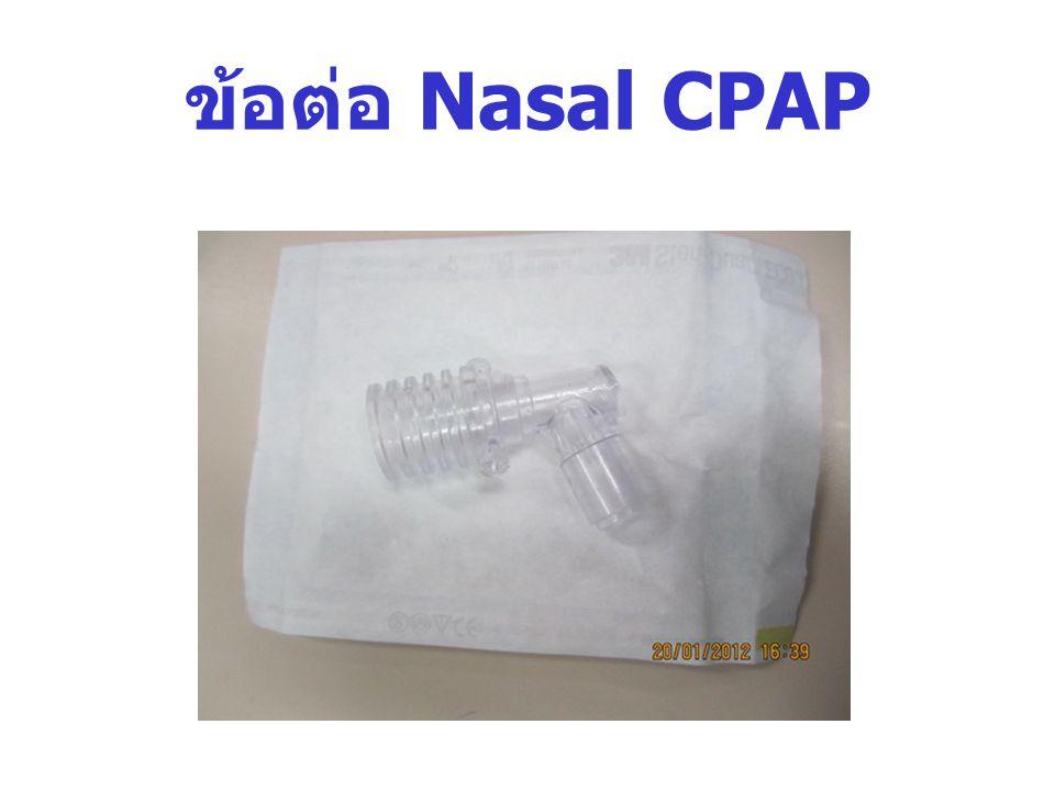 ข้อต่อ Nasal CPAP