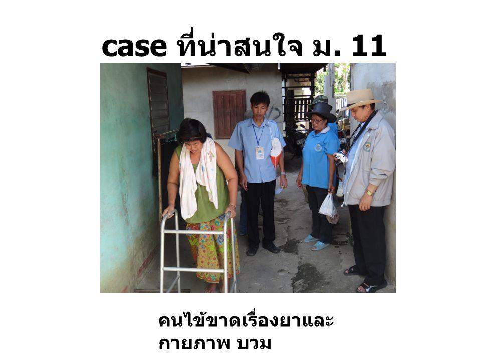 case ที่น่าสนใจ ม. 11 คนไข้ขาดเรื่องยาและ กายภาพ บวม