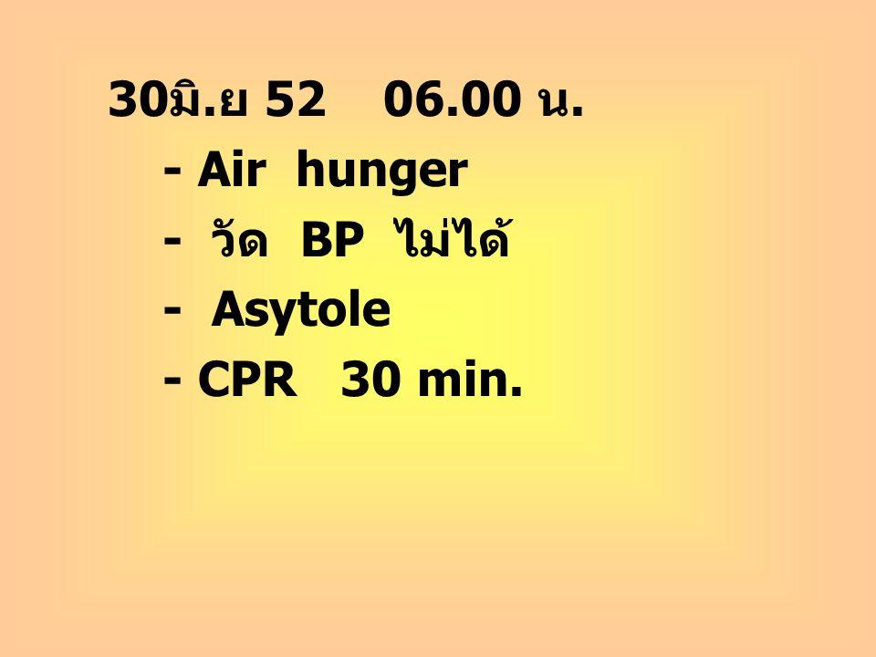30 มิ. ย 52 06.00 น. - Air hunger - วัด BP ไม่ได้ - Asytole - CPR 30 min.