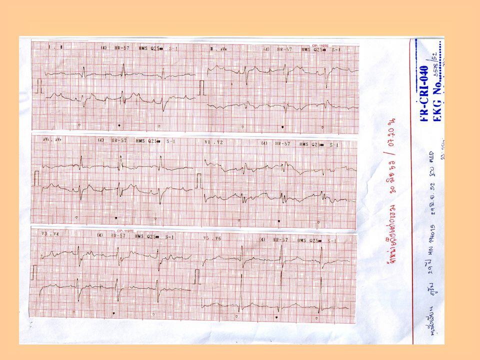 - ICU Med - Monitor FHR - counseling สามี