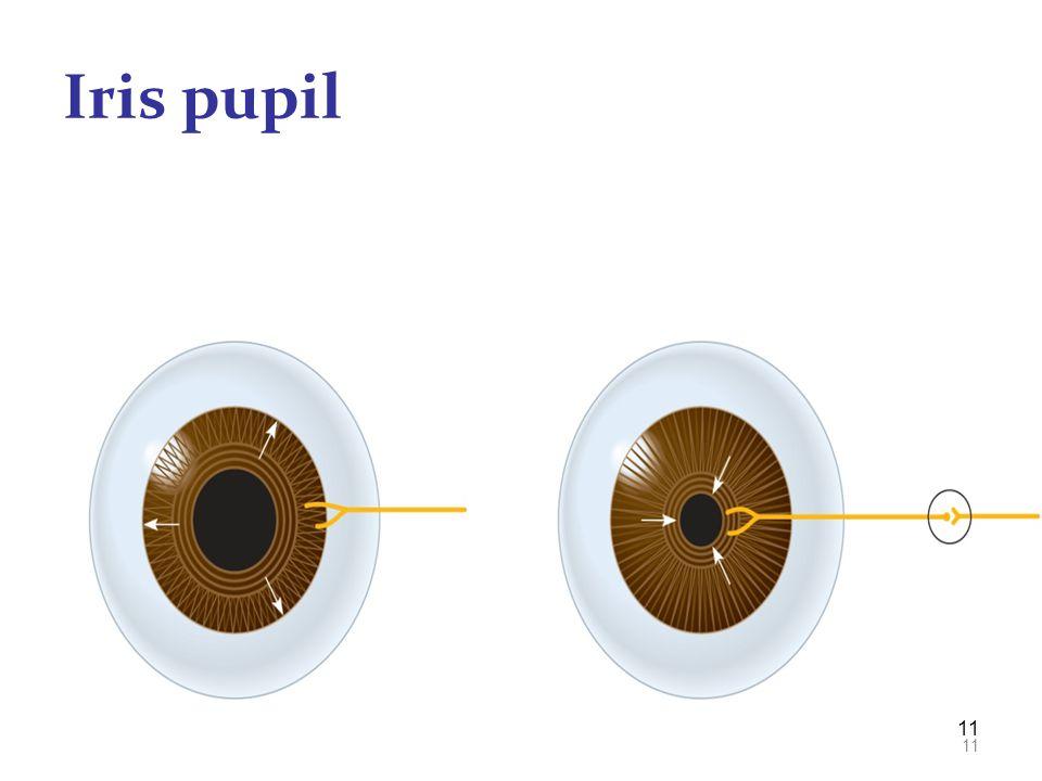 11 Iris pupil