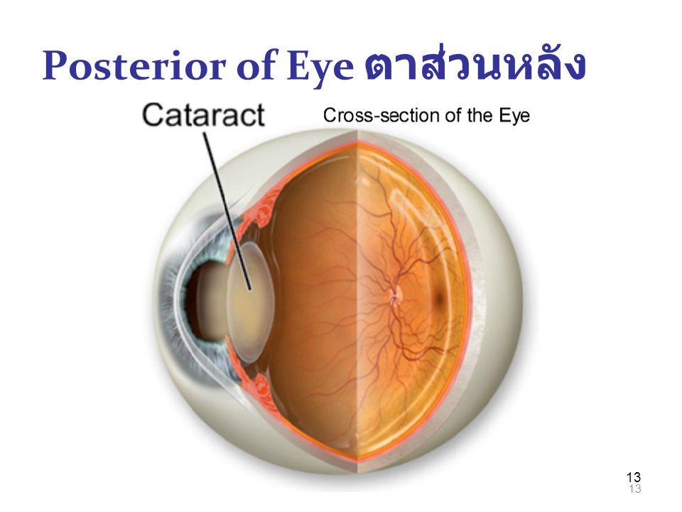 13 Posterior of Eye ตาส่วนหลัง