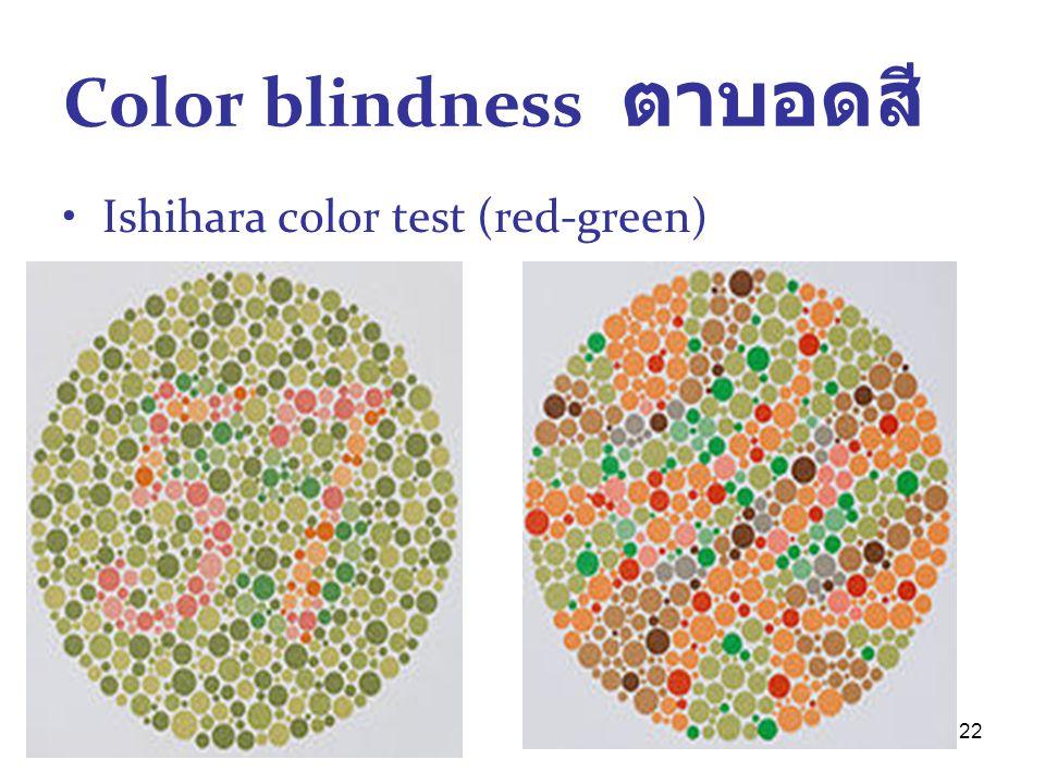 22 Color blindness ตาบอดสี Ishihara color test (red-green)