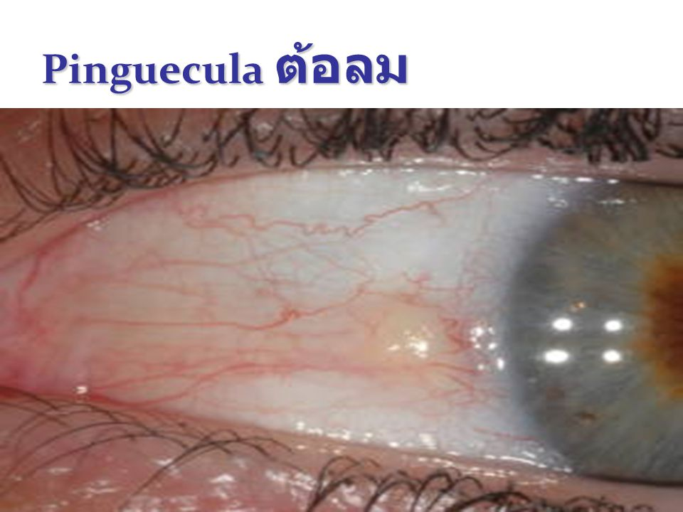 29 Pinguecula ต้อลม