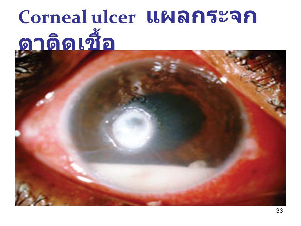 33 Corneal ulcer แผลกระจก ตาติดเชื้อ