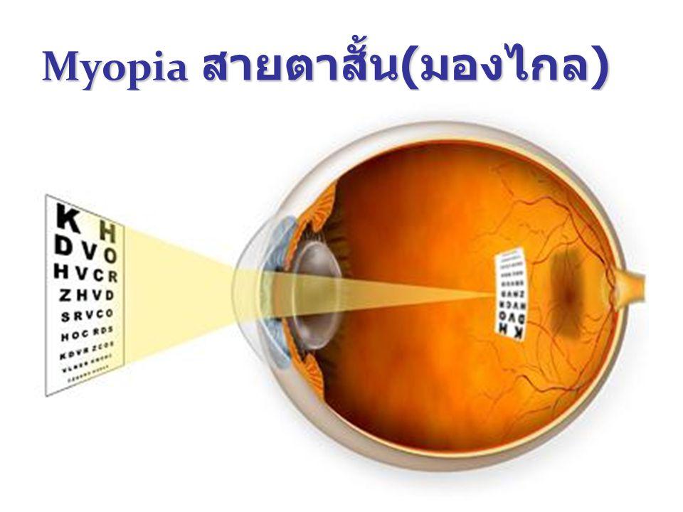 36 Myopia สายตาสั้น ( มองไกล )
