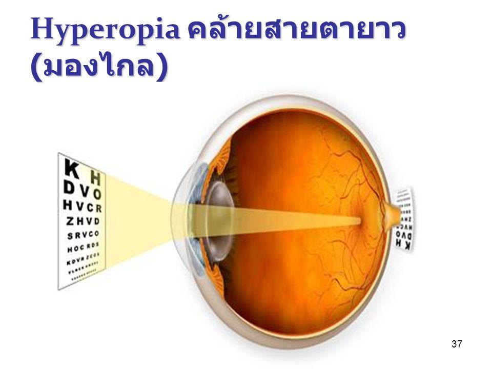 37 Hyperopia คล้ายสายตายาว ( มองไกล )