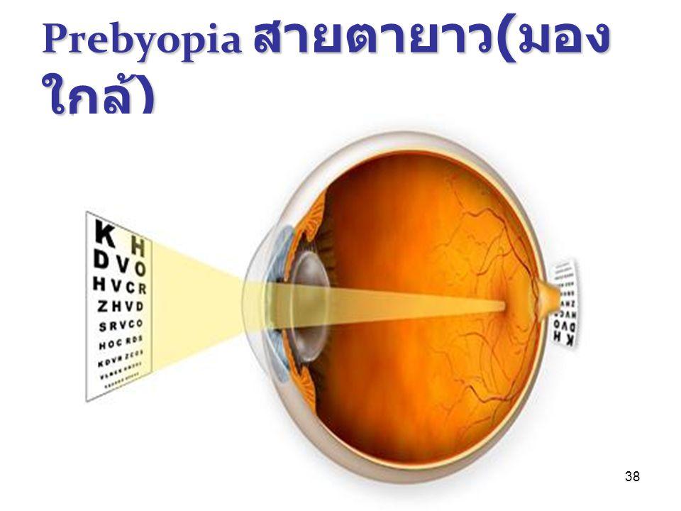 38 Prebyopia สายตายาว ( มอง ใกล้ )