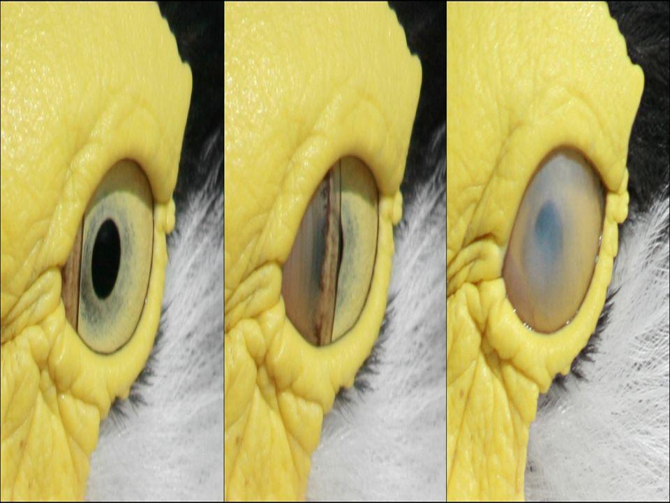 25 Refraction กล้องวัดสายตา