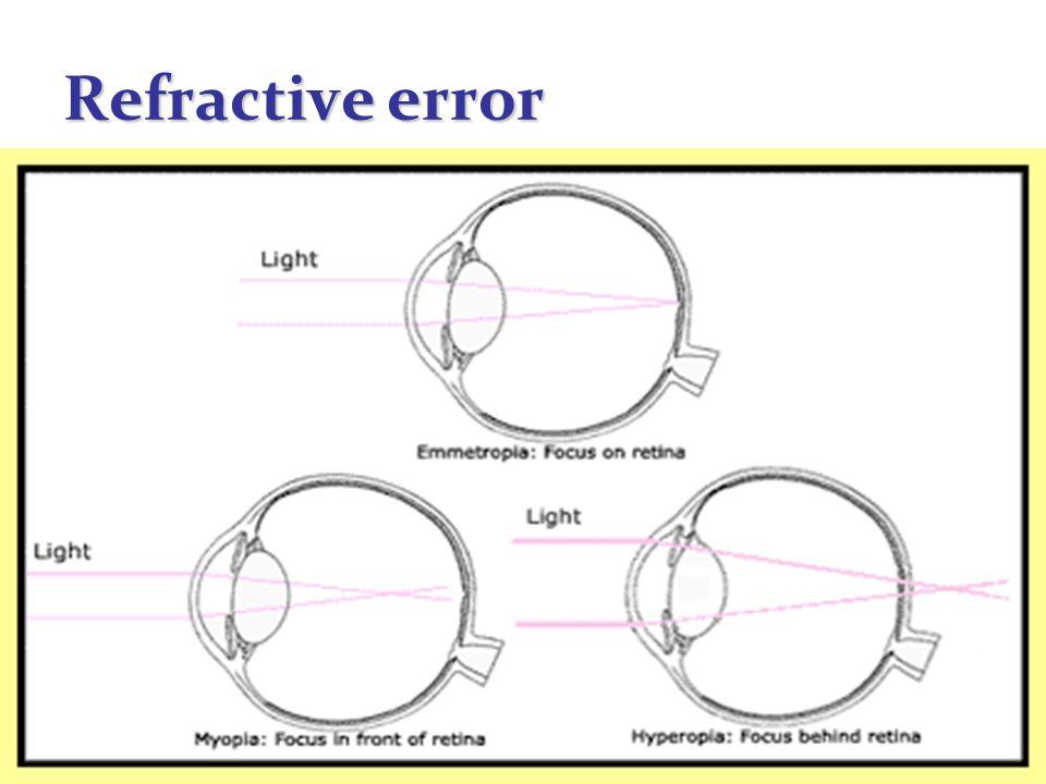 41 Refractive error