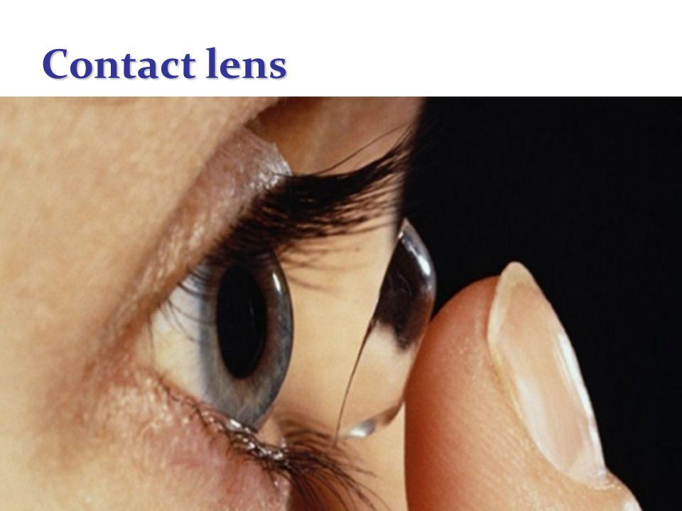 52 Contact lens