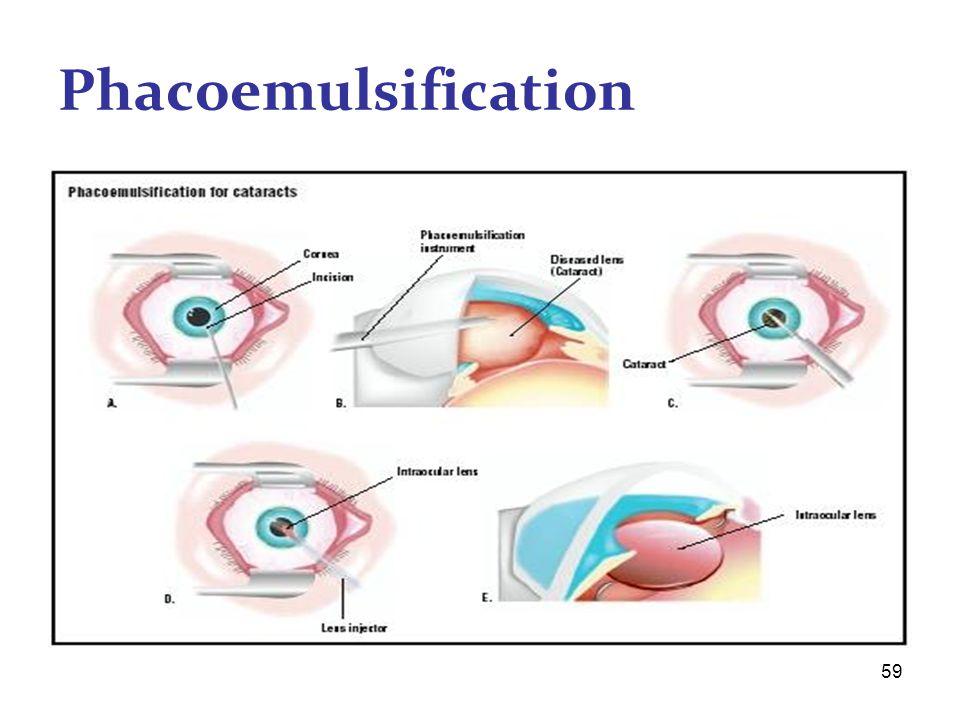 59 Phacoemulsification