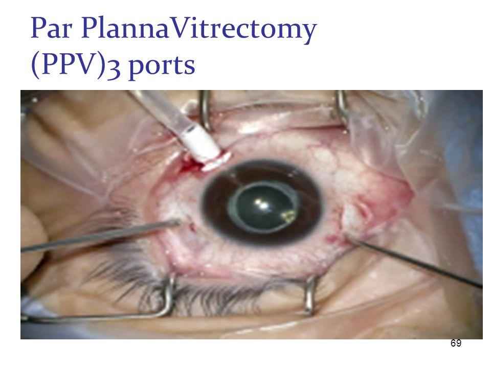 Par PlannaVitrectomy (PPV)3 ports 69