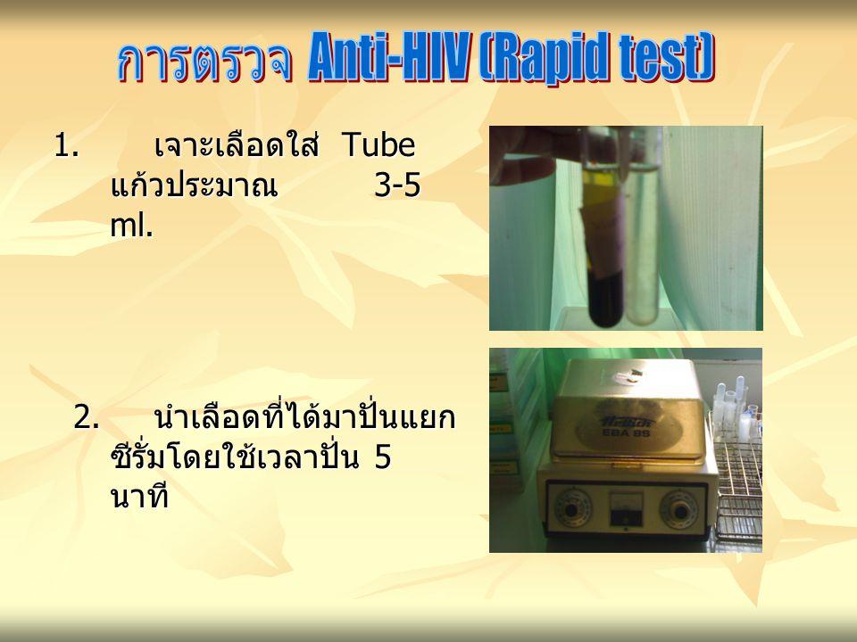 1.เจาะเลือดใส่ Tube แก้วประมาณ 3-5 ml. 2. นำเลือดที่ได้มาปั่นแยก ซีรั่มโดยใช้เวลาปั่น 5 นาที 2.