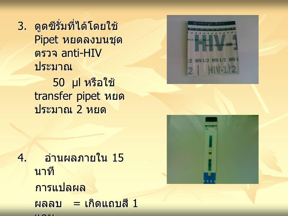 3. ดูดซีรั่มที่ได้โดยใช้ Pipet หยดลงบนชุด ตรวจ anti-HIV ประมาณ 50 µl หรือใช้ transfer pipet หยด ประมาณ 2 หยด 50 µl หรือใช้ transfer pipet หยด ประมาณ 2