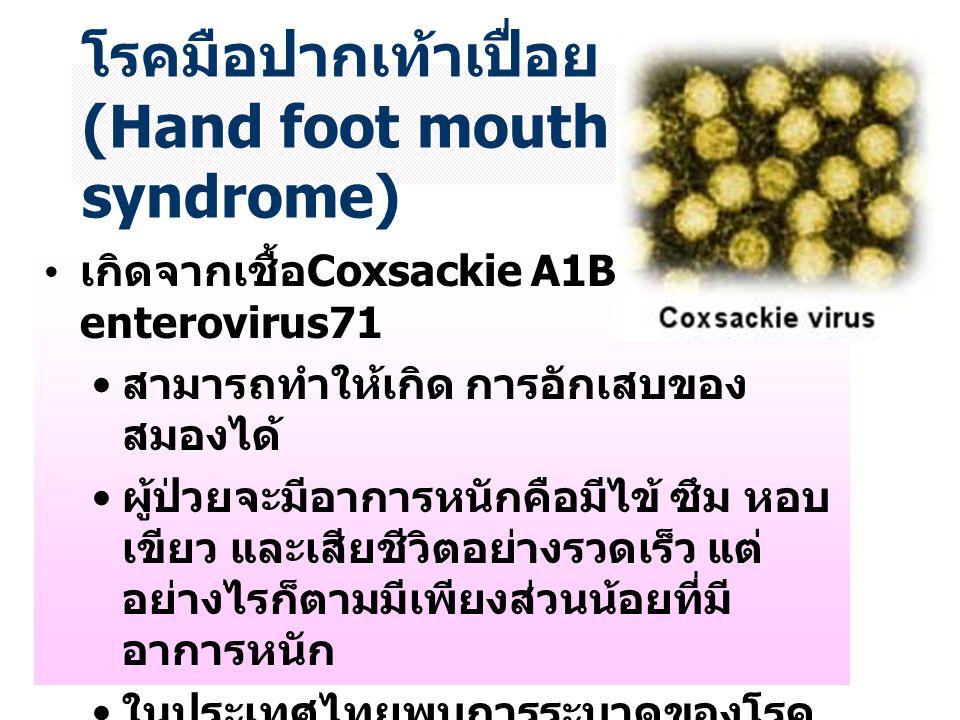 น. ส. รสริน บวรวิริยพันธุ์ 45043627 โรคมือปากเท้าเปื่อย (Hand foot mouth syndrome) เกิดจากเชื้อ Coxsackie A1B และ enterovirus71 สามารถทำให้เกิด การอัก