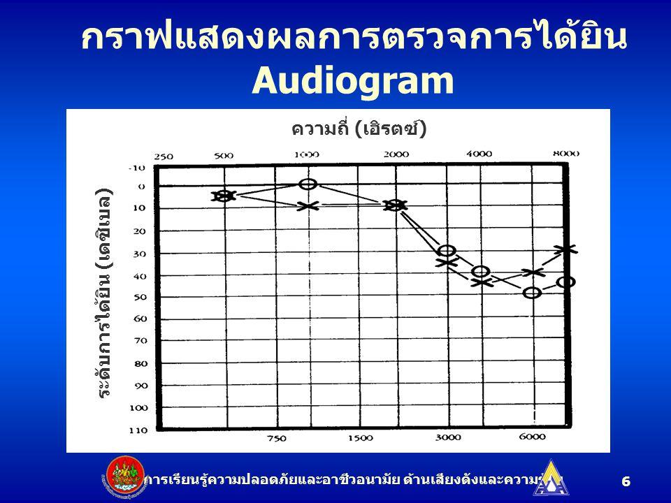 6 ระดับการได้ยิน ( เดซิเบล ) ความถี่ ( เฮิรตซ์ ) กราฟแสดงผลการตรวจการได้ยิน Audiogram ชุดการเรียนรู้ความปลอดภัยและอาชีวอนามัย ด้านเสียงดังและความร้อน