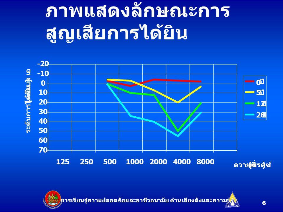 ภาพแสดงลักษณะการ สูญเสียการได้ยิน -20 -10 0 10 20 30 40 50 60 70 ความถี่ ( เฮิรตซ์ ) ระดับการได้ยิน ( เดซิเบล เอ ) 1252505001000200040008000 0 ปี 5 12