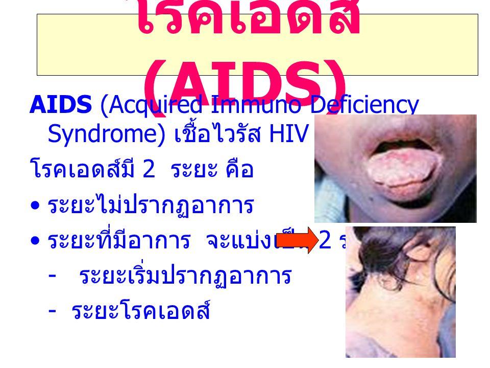 โรคเอดส์ (AIDS) AIDS (Acquired Immuno Deficiency Syndrome) เชื้อไวรัส HIV โรคเอดส์มี 2 ระยะ คือ ระยะไม่ปรากฏอาการ ระยะที่มีอาการ จะแบ่งเป็น 2 ระยะ คือ - ระยะเริ่มปรากฏอาการ - ระยะโรคเอดส์