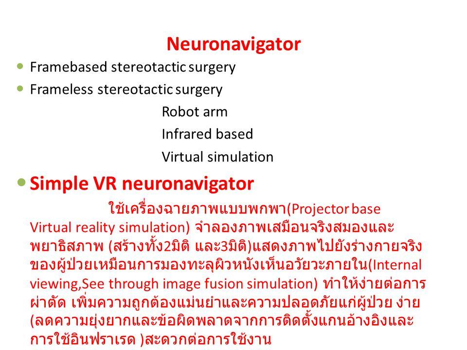 Neuronavigator Framebased stereotactic surgery Frameless stereotactic surgery Robot arm Infrared based Virtual simulation Simple VR neuronavigator ใช้เครื่องฉายภาพแบบพกพา (Projector base Virtual reality simulation) จำลองภาพเสมือนจริงสมองและ พยาธิสภาพ ( สร้างทั้ง 2 มิติ และ 3 มิติ ) แสดงภาพไปยังร่างกายจริง ของผู้ป่วยเหมือนการมองทะลุผิวหนังเห็นอวัยวะภายใน (Internal viewing,See through image fusion simulation) ทำให้ง่ายต่อการ ผ่าตัด เพิ่มความถูกต้องแม่นยำและความปลอดภัยแก่ผู้ป่วย ง่าย ( ลดความยุ่งยากและข้อผิดพลาดจากการติดตั้งแกนอ้างอิงและ การใช้อินฟราเรด ) สะดวกต่อการใช้งาน