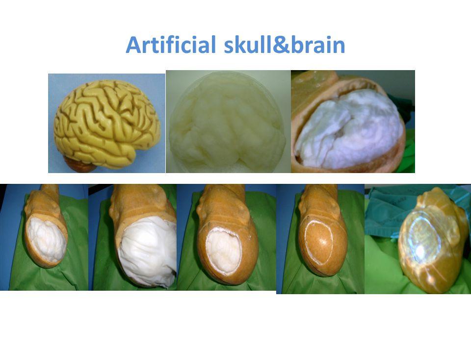 Artificial skull&brain