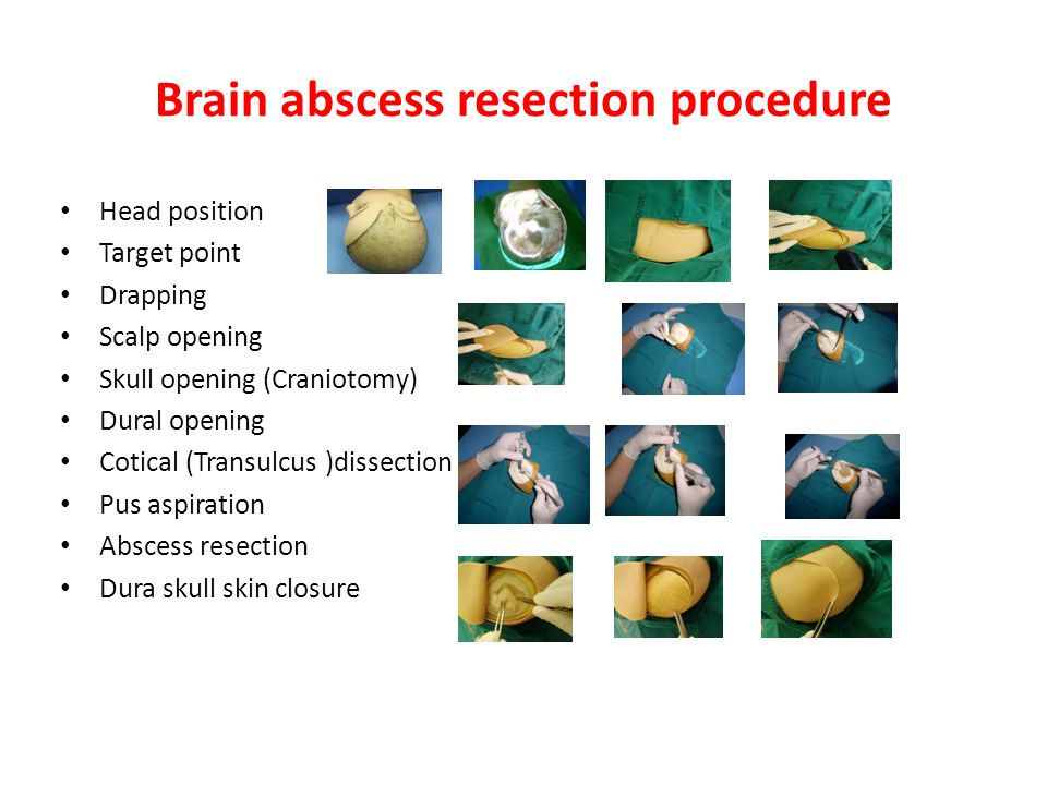 Brain abscess resection procedure Head position Target point Drapping Scalp opening Skull opening (Craniotomy) Dural opening Cotical (Transulcus )dissection Pus aspiration Abscess resection Dura skull skin closure
