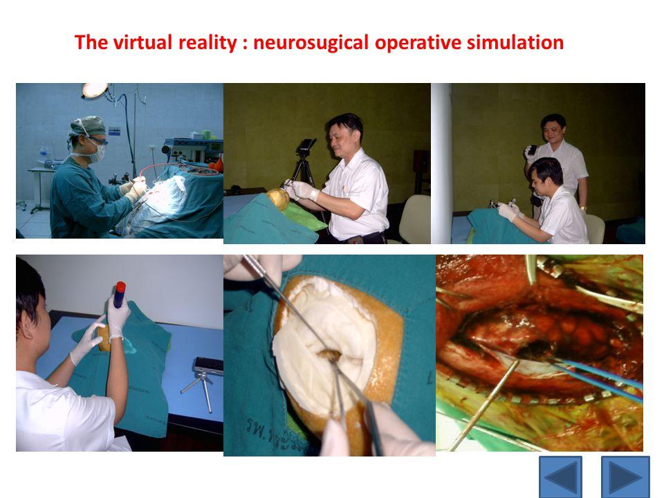 The virtual reality : neurosugical operative simulation