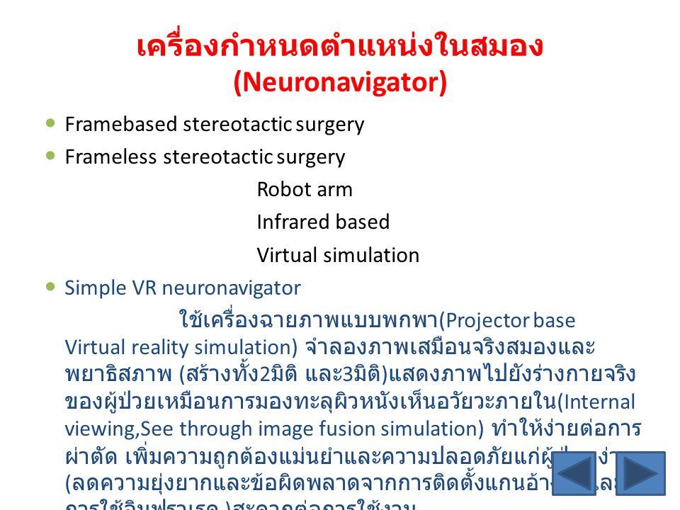เครื่องกำหนดตำแหน่งในสมอง (Neuronavigator) Framebased stereotactic surgery Frameless stereotactic surgery Robot arm Infrared based Virtual simulation Simple VR neuronavigator ใช้เครื่องฉายภาพแบบพกพา (Projector base Virtual reality simulation) จำลองภาพเสมือนจริงสมองและ พยาธิสภาพ ( สร้างทั้ง 2 มิติ และ 3 มิติ ) แสดงภาพไปยังร่างกายจริง ของผู้ป่วยเหมือนการมองทะลุผิวหนังเห็นอวัยวะภายใน (Internal viewing,See through image fusion simulation) ทำให้ง่ายต่อการ ผ่าตัด เพิ่มความถูกต้องแม่นยำและความปลอดภัยแก่ผู้ป่วย ง่าย ( ลดความยุ่งยากและข้อผิดพลาดจากการติดตั้งแกนอ้างอิงและ การใช้อินฟราเรด ) สะดวกต่อการใช้งาน