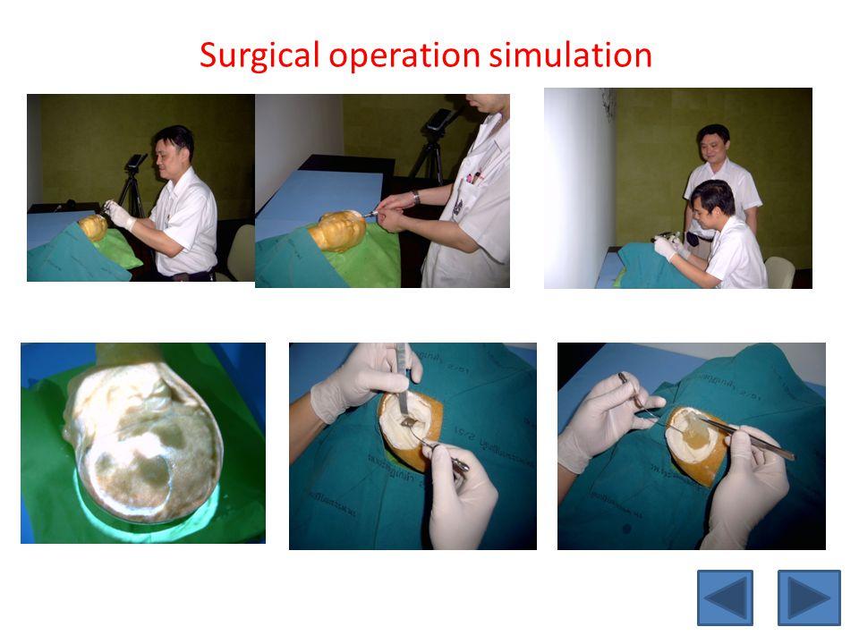 Surgical operation simulation