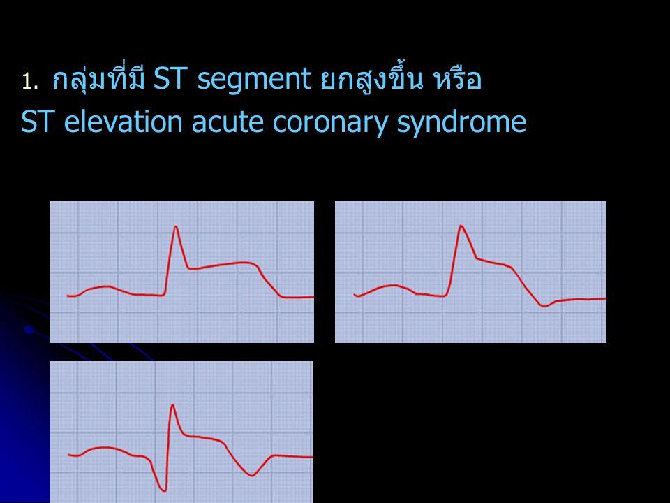 1. กลุ่มที่มี ST segment ยกสูงขึ้น หรือ ST elevation acute coronary syndrome