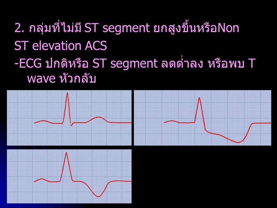 2. กลุ่มที่ไม่มี ST segment ยกสูงขึ้นหรือNon ST elevation ACS -ECG ปกติหรือ ST segment ลดต่ำลง หรือพบ T wave หัวกลับ