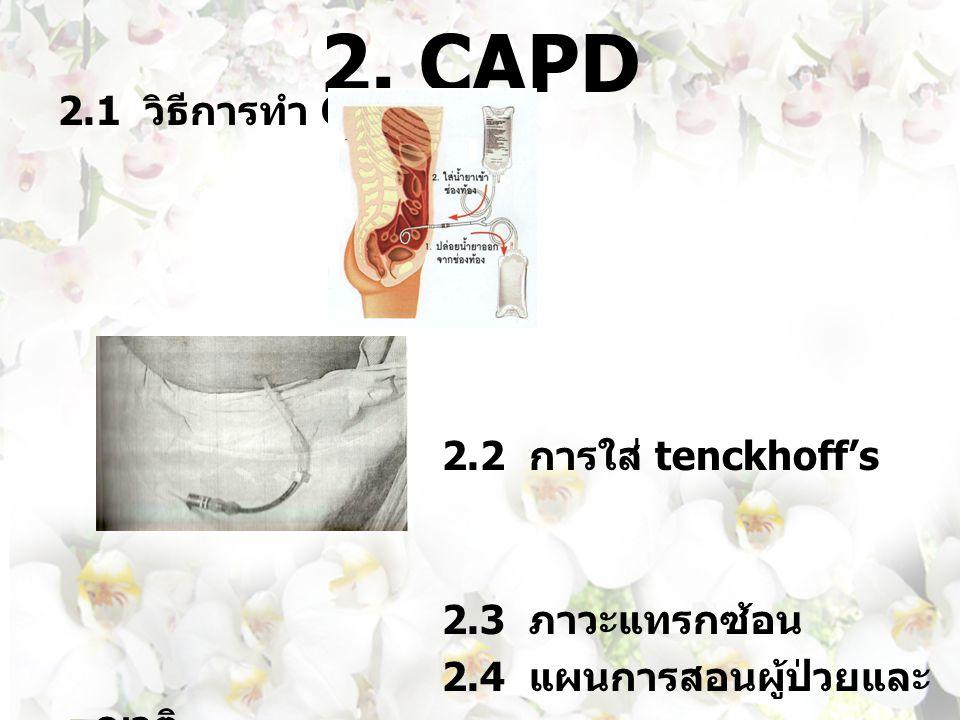 2. CAPD 2.1 วิธีการทำ CAPD 2.2 การใส่ tenckhoff's catheter 2.3 ภาวะแทรกซ้อน 2.4 แผนการสอนผู้ป่วยและ ญาติ 2.5 ค่าใช้จ่าย
