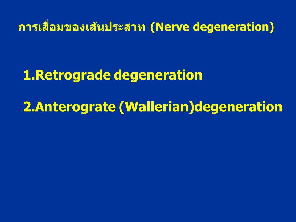 1.Retrograde degeneration 2.Anterograte (Wallerian)degeneration การเสื่อมของเส้นประสาท (Nerve degeneration)