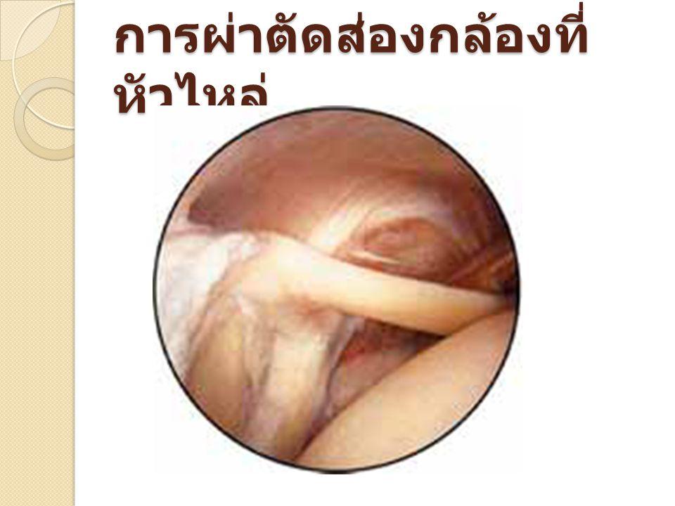 การผ่าตัดส่องกล่องเพื่อ ตัดเส้นเอ็น ไบเซปส์ (Biceps) ที่ หัวไหล่