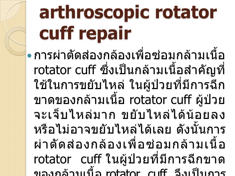 arthroscopic rotator cuff repair การผ่าตัดส่องกล้องเพื่อซ่อมกล้ามเนื้อ rotator cuff ซึ่งเป็นกล้ามเนื้อสำคัญที่ ใช้ในการขยับไหล่ ในผู้ป่วยที่มีการฉีก ขาดของกล้ามเนื้อ rotator cuff ผู้ป่วย จะเจ็บไหล่มาก ขยับไหล่ได้น้อยลง หรือไม่อาจขยับไหล่ได้เลย ดังนั้นการ ผ่าตัดส่องกล้องเพื่อซ่อมกล้ามเนื้อ rotator cuff ในผู้ป่วยที่มีการฉีกขาด ของกล้ามเนื้อ rotator cuff จึงเป็นการ ผ่าตัดเพื่อลดการเจ็บปวดของไหล่ และ ช่วยให้ผู้ป่วยสามารถใช้งานไหล่ได้ดี อีกครั้ง