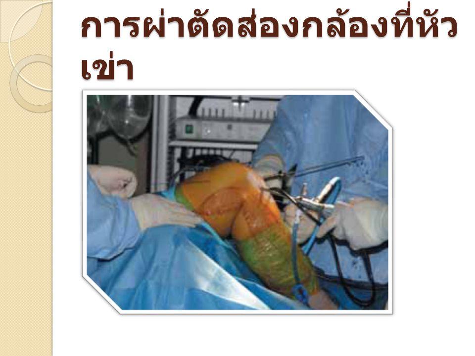 การผ่าตัดส่องกล้องเพื่อ เปลี่ยนเส้นเอ็นไขว้ หน้าที่หัวเข่า