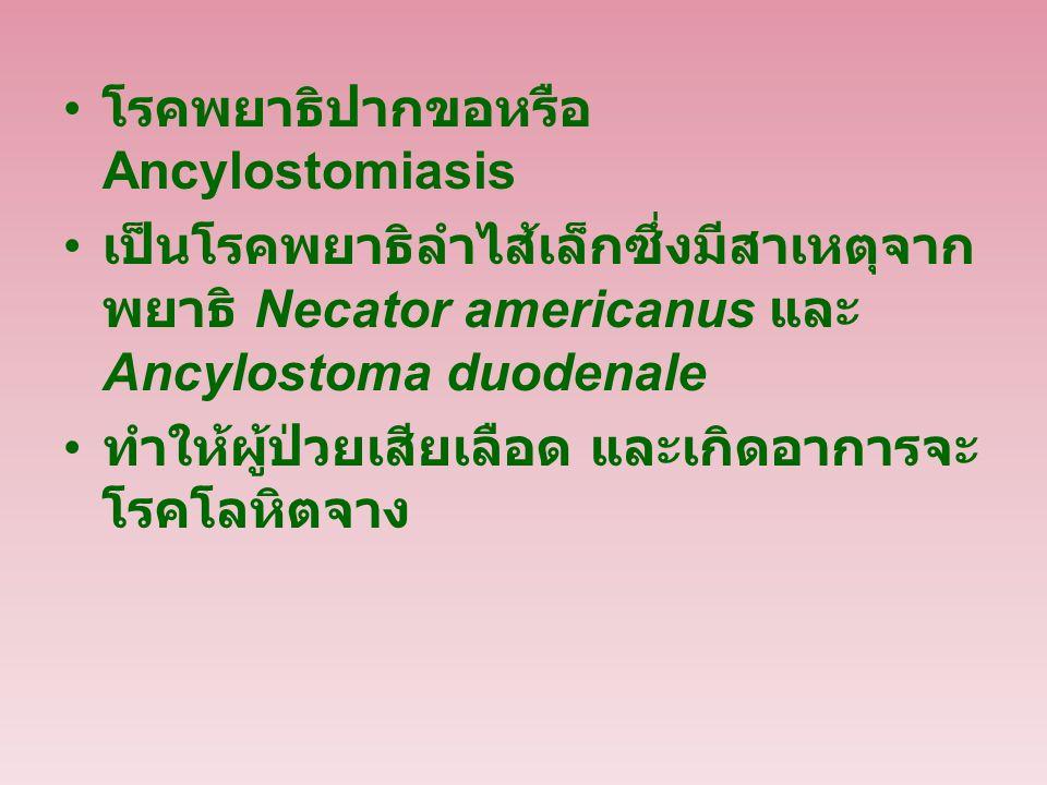 โรคพยาธิปากขอหรือ Ancylostomiasis เป็นโรคพยาธิลำไส้เล็กซึ่งมีสาเหตุจาก พยาธิ Necator americanus และ Ancylostoma duodenale ทำให้ผู้ป่วยเสียเลือด และเกิดอาการจะ โรคโลหิตจาง