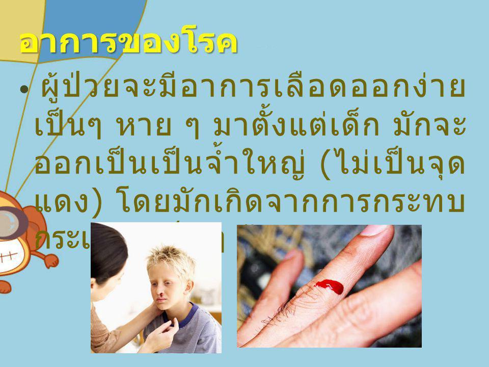 อาการของโรค ผู้ป่วยจะมีอาการเลือดออกง่าย เป็นๆ หาย ๆ มาตั้งแต่เด็ก มักจะ ออกเป็นเป็นจ้ำใหญ่ ( ไม่เป็นจุด แดง ) โดยมักเกิดจากการกระทบ กระแทก เล็ก ๆ น้อ