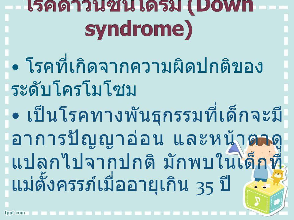 อาการของโรค อาการของโรค เด็กกลุ่มอาการดาวน์จะมีศีรษะ ค่อนข้างเล็ก แบน ตาเฉียงขึ้น ดั้ง จมูกแบน ปากเล็ก มือสั้น ขาสั้น ตัว เตี้ย ปัญญาอ่อน ไอคิว 20-150
