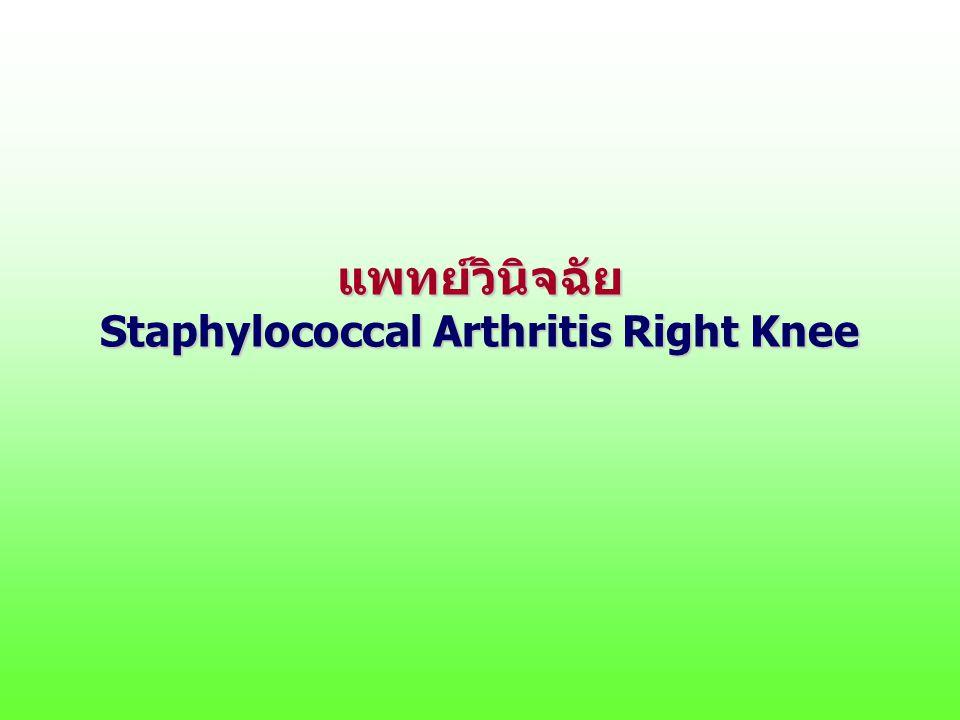 แพทย์วินิจฉัย Staphylococcal Arthritis Right Knee