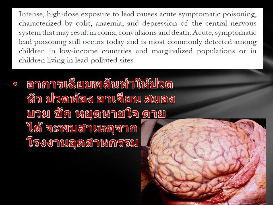 อาการเรื้อรัง: ปวดท้อง ซีด สติปัญญาลดต่ำลง ปัญหา พฤติกรรม ทำลายสมอง ไต อักเสบ พบสาเหตุจากการ ปนเปื้อนในสี น้ำ อาหาร ของ เล่น ของใช้ 65% ของตะกั่วจะ ถูกขับออกที่ไต ทำ ให้ไตอักเสบ ทำลายเซลไต ทำให้ไตวายได้ ทำลายเม็ดเลือดแดง ซีด เม็ดเลือดแดง ขนสงออกซิเจนไม่ได้ดี การเติบโตไม่ดี อ่อนเพลียง่าย การศึกษาของ Canfield และ คณะ พบว่าสาร ตะกั่วในเลือดที่ เพิ่มขึ้นทุก 10 มคก / ดล จะทำ ให้ IQ ลดลง 4.6 จุด