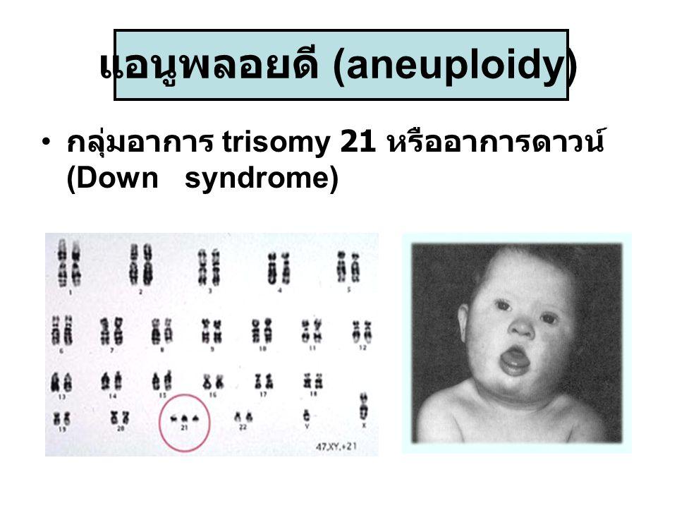 แอนูพลอยดี (aneuploidy) กลุ่มอาการ trisomy 21 หรืออาการดาวน์ (Down syndrome)