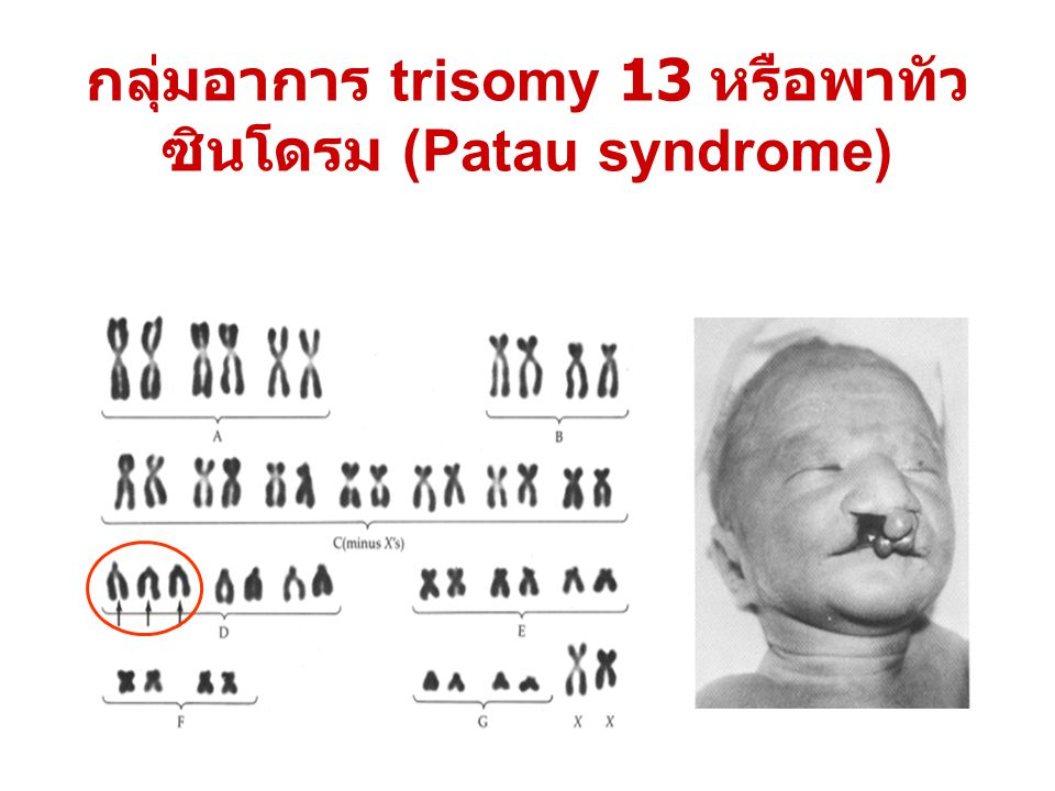 กลุ่มอาการ trisomy 13 หรือพาทัว ซินโดรม (Patau syndrome)